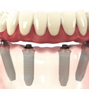3 dicas de beleza para manter o efeito do clareamento dental